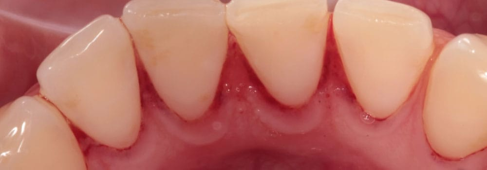Bottom teeth after scale and polish