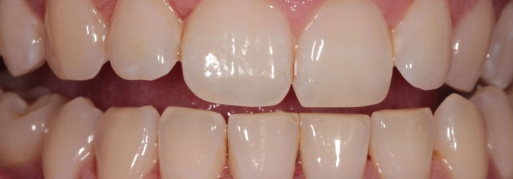 Upper and lower teeth after scale and polish