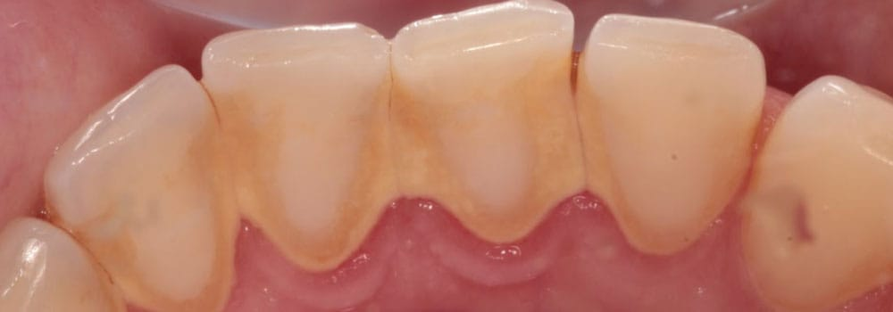 Bottom teeth before scale and polish