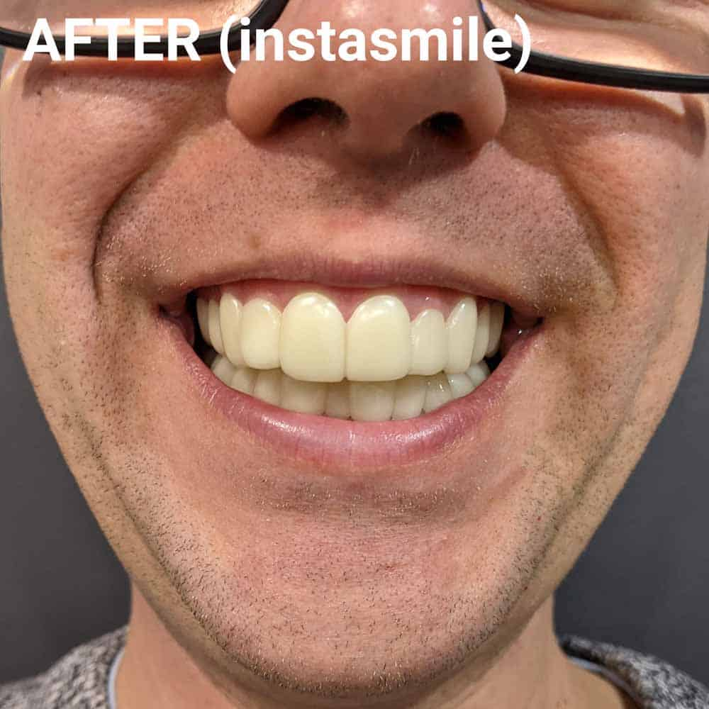 instasmile Clip-On Veneers Review 7