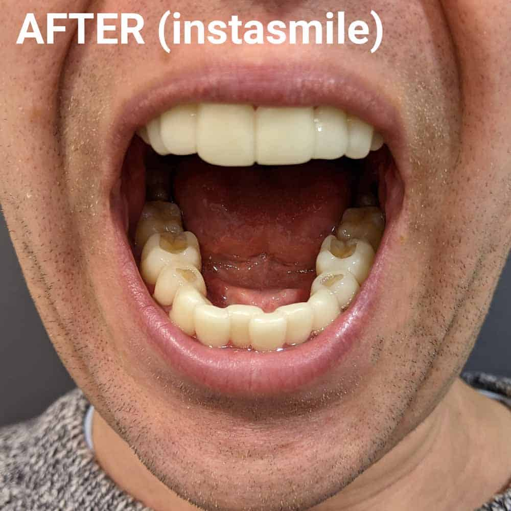 instasmile Clip-On Veneers Review 16
