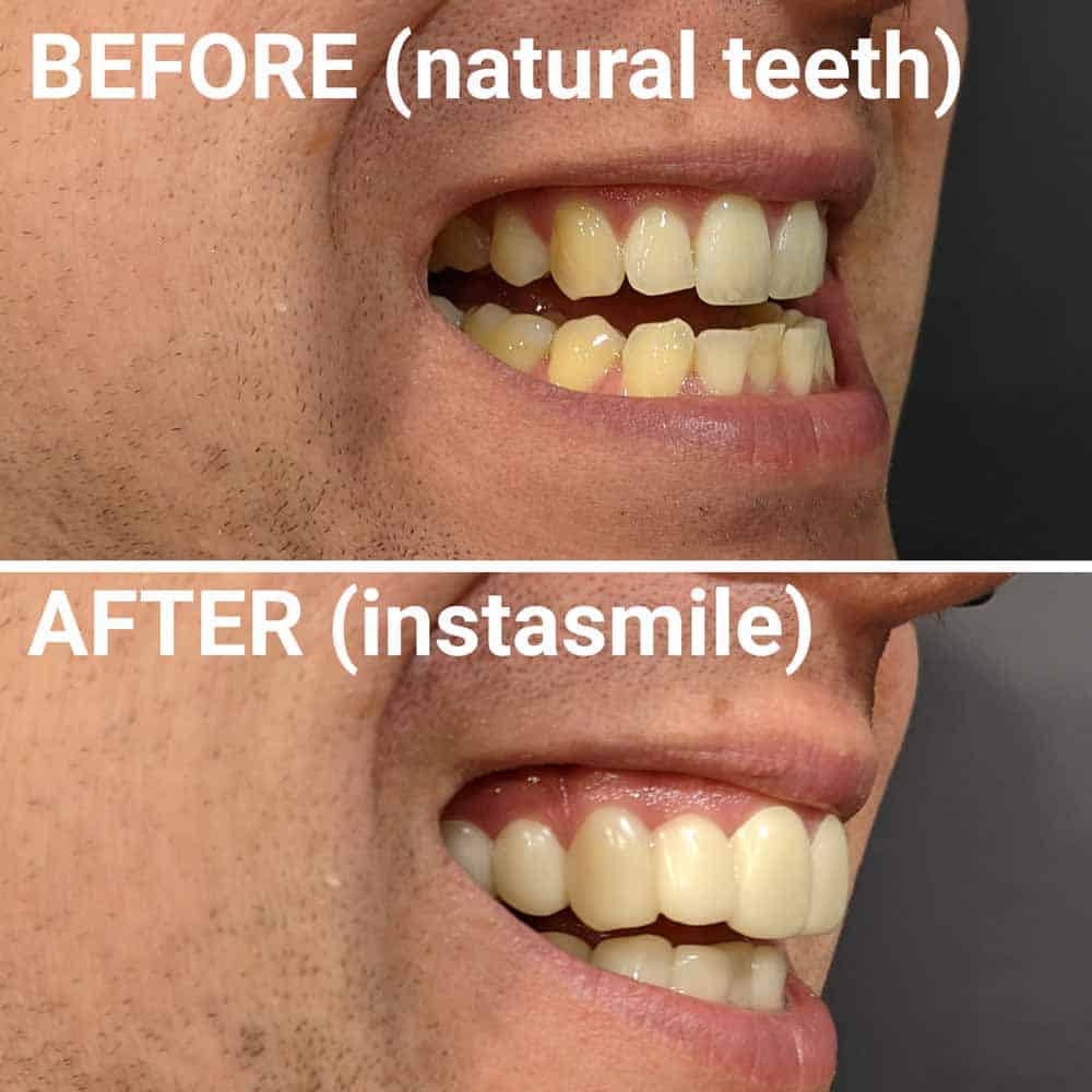 instasmile Clip-On Veneers Review 8