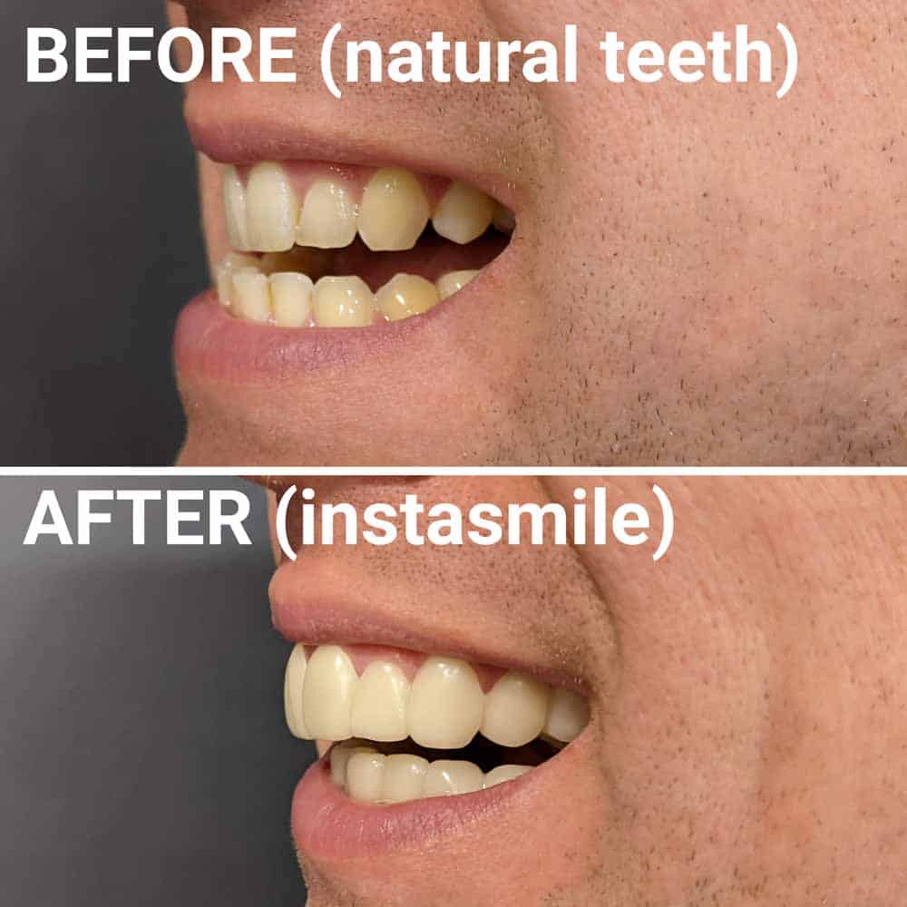 instasmile Clip-On Veneers Review 3