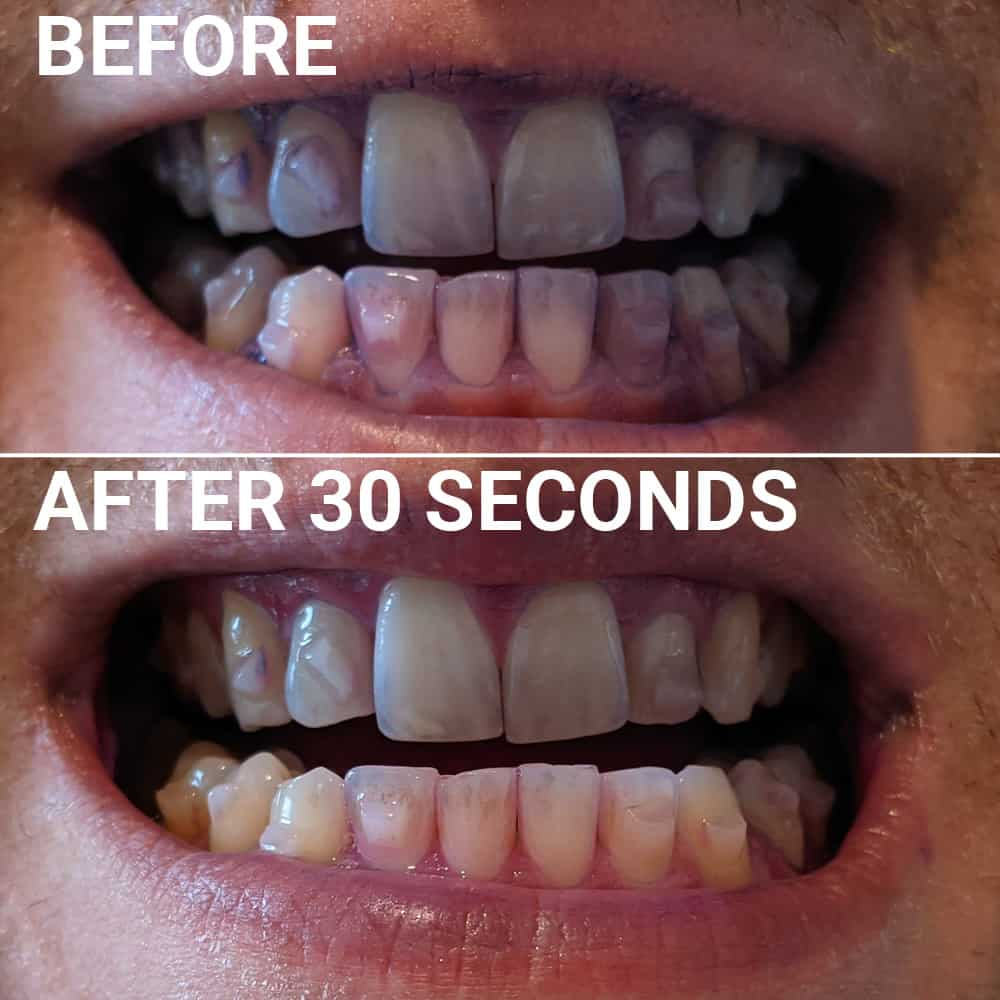 Plaque Disclosing Results Unobrush 30 Seconds