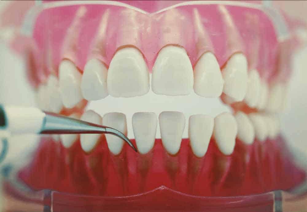 Ultrasonic cleaner being used on model of teeth
