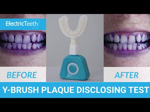 Y-Brush Plaque Disclosing Test