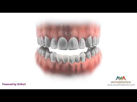 Orthodontics Treatment with Extraction - Removing Different Teeth