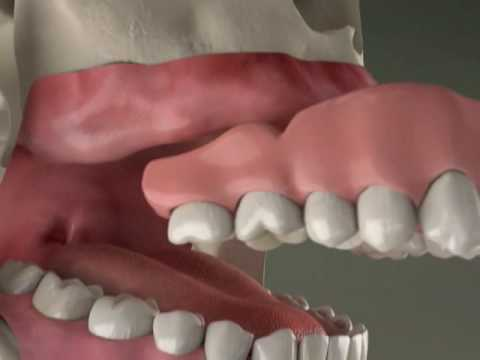 Dental Implants - Implant Overdenture in Denville, NJ