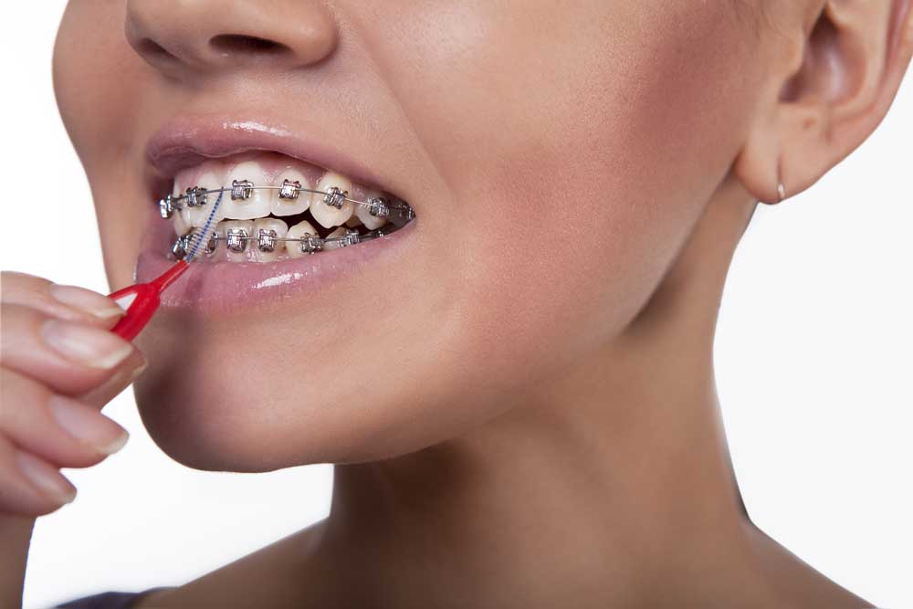 How to stop braces pain & other braces problems 7