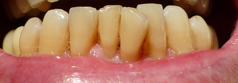 Teeth with gum recession