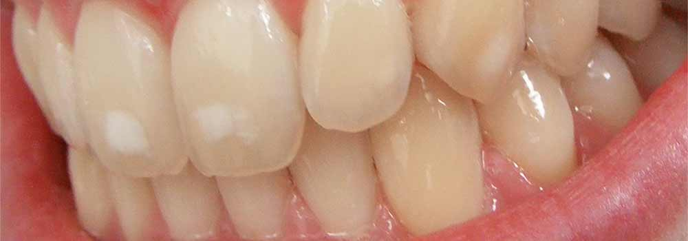 Front teeth with white marks on