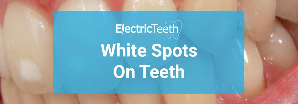 White Spots On Teeth: Why Are They There & How Do You Get Rid Of Them?