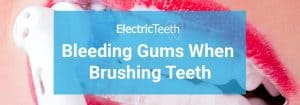 Bleeding gums when brushing teeth