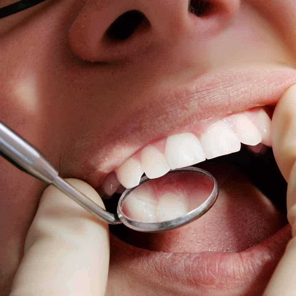 Tooth Decay: Signs, Symptoms & Treatments 25