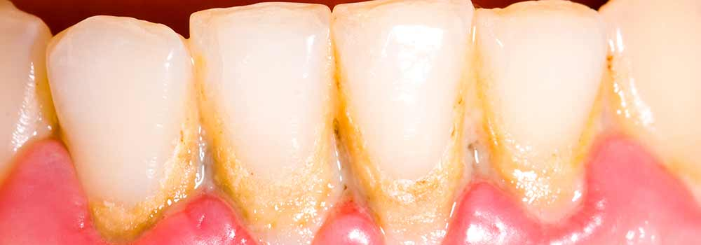 Teeth with hardened plaque known as tartar or calculus