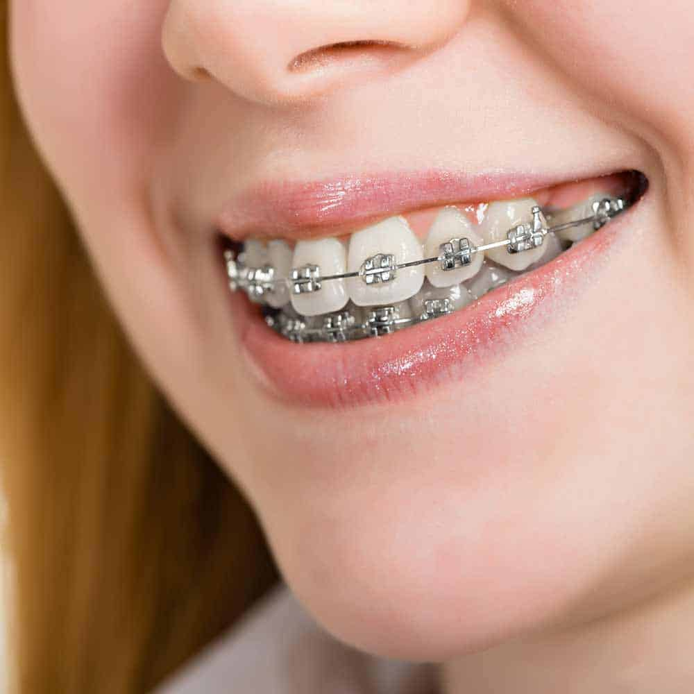 How to stop braces pain & other braces problems 11