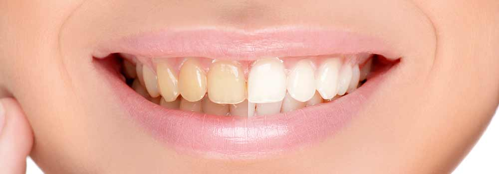 Yellow teeth: what causes them & do you need to worry about it? 29