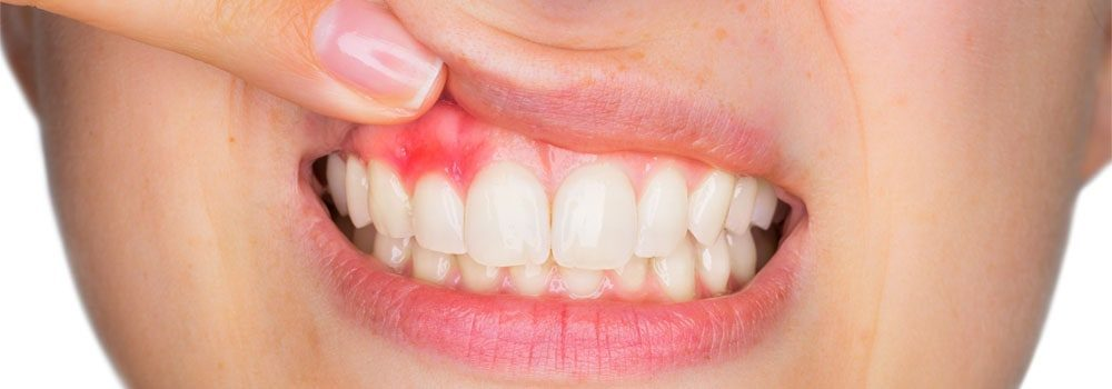 Tooth, mouth & gum abscess treatment: a detailed guide 6