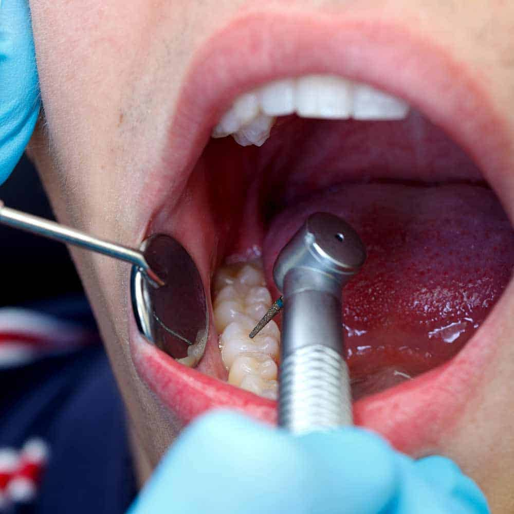 Tooth Extraction: Healing Time, Cost & Removal Process 21