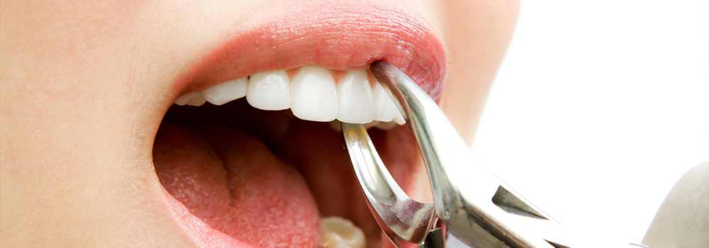Tooth Extraction: Healing Time, Cost & Removal Process 1