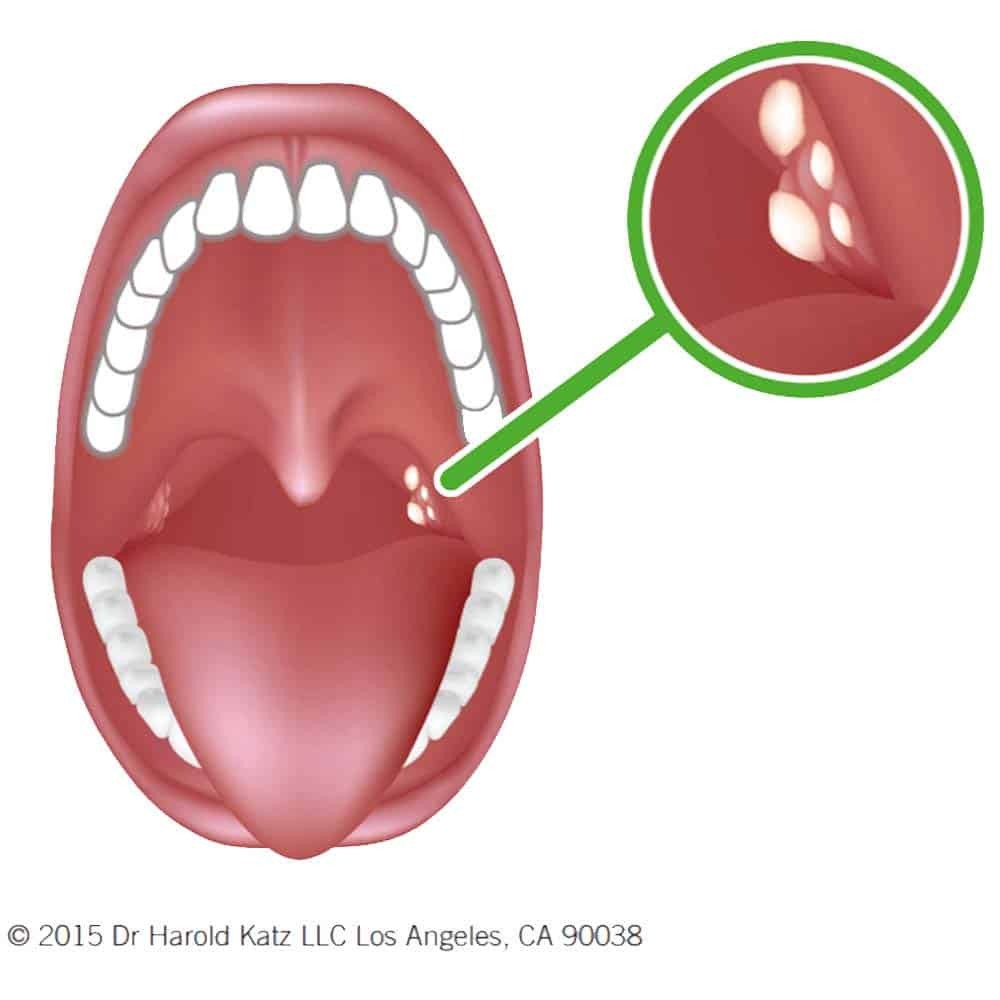 Illustration of location of tonsil tones