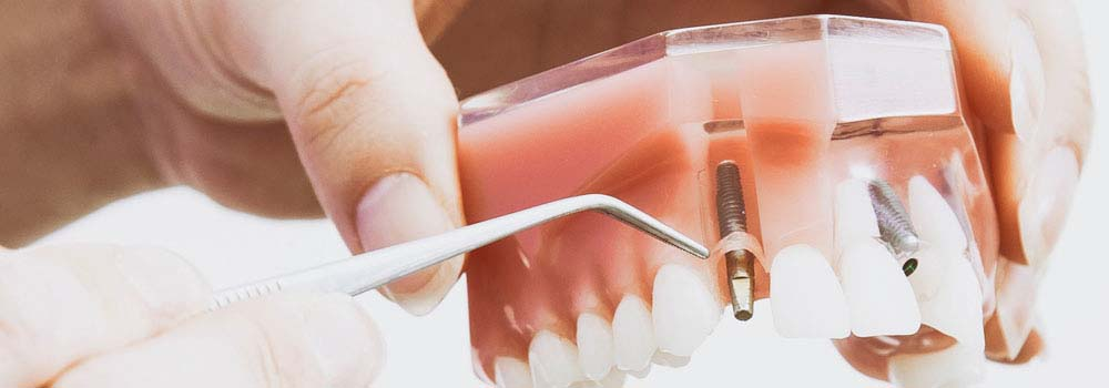 Dental Implants: A Complete Guide To Costs & Procedures 6
