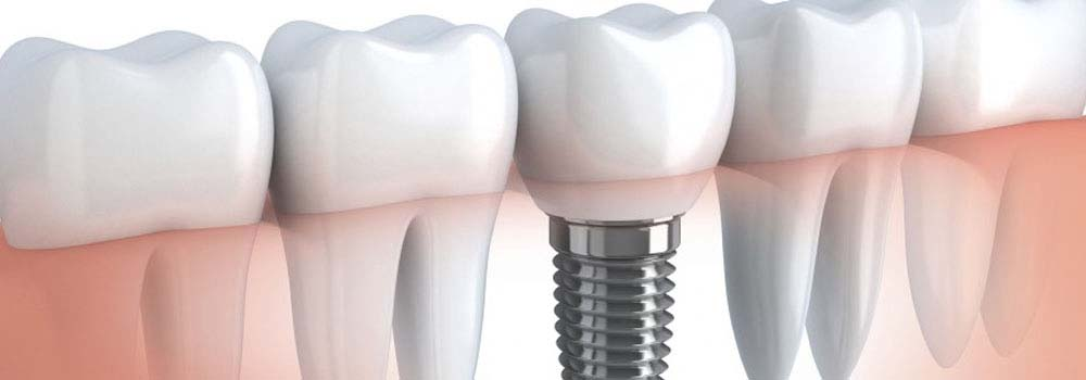 Dental Implants: A Complete Guide To Costs & Procedures 5