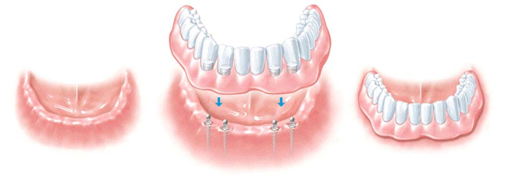 Mini & Midi Dental Implants: Costs, Procedure & FAQ 3