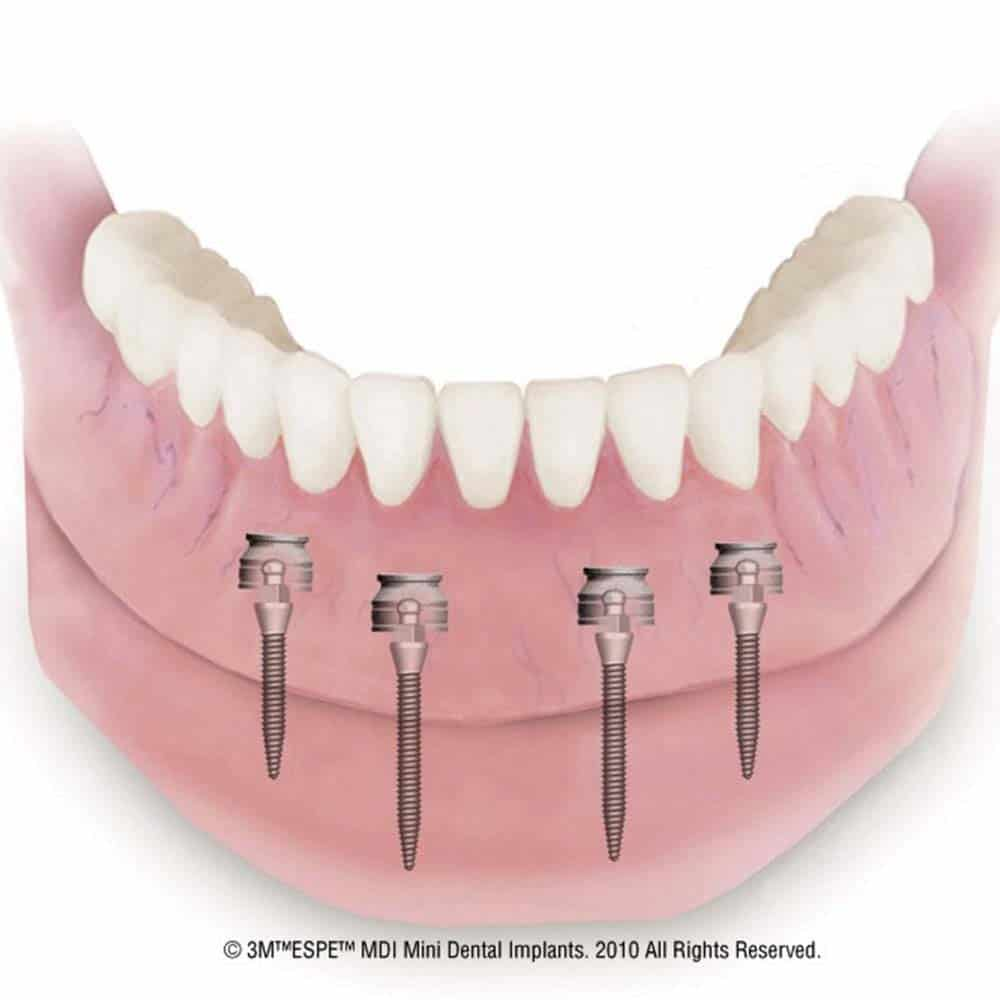 Mini & Midi Dental Implants: Costs, Procedure & FAQ 9