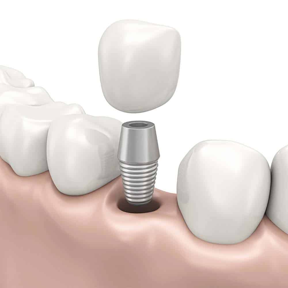 Mini & Midi Dental Implants: Costs, Procedure & FAQ 2