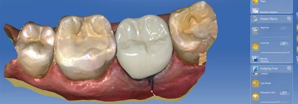 Dental Crowns & Tooth Caps: Costs, Procedure & FAQ 15