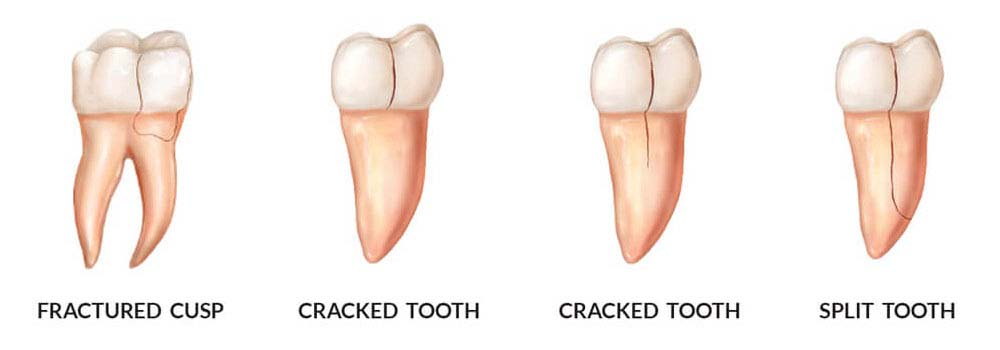 Tooth repair: how to fix a chipped, cracked or broken tooth 35