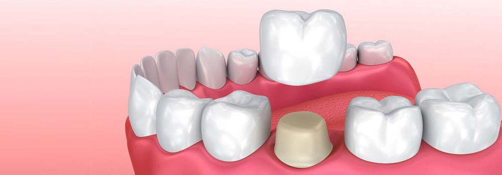 Dental Crowns & Tooth Caps: Costs, Procedure & FAQ 1