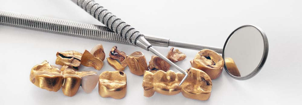 Dental Crowns & Tooth Caps: Costs, Procedure & FAQ 24