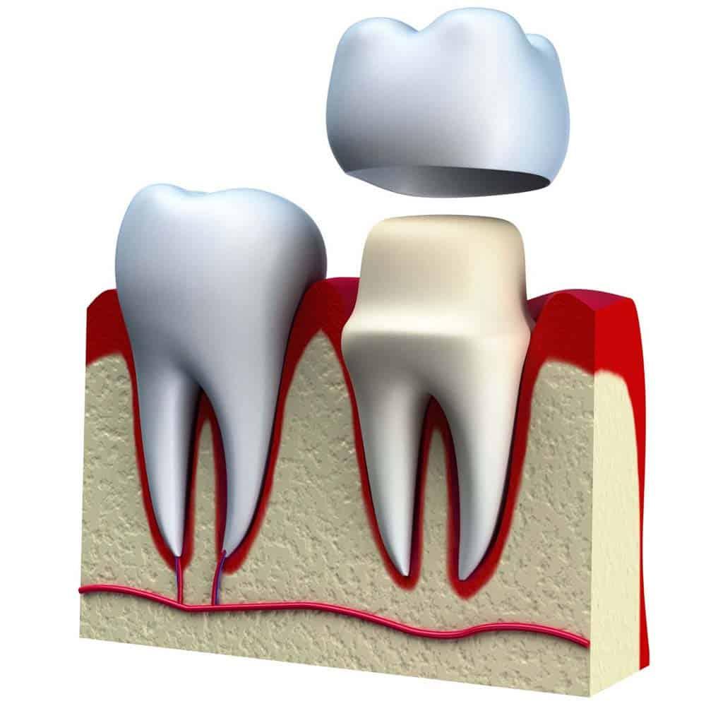 Dental Crowns & Tooth Caps: Costs, Procedure & FAQ 24