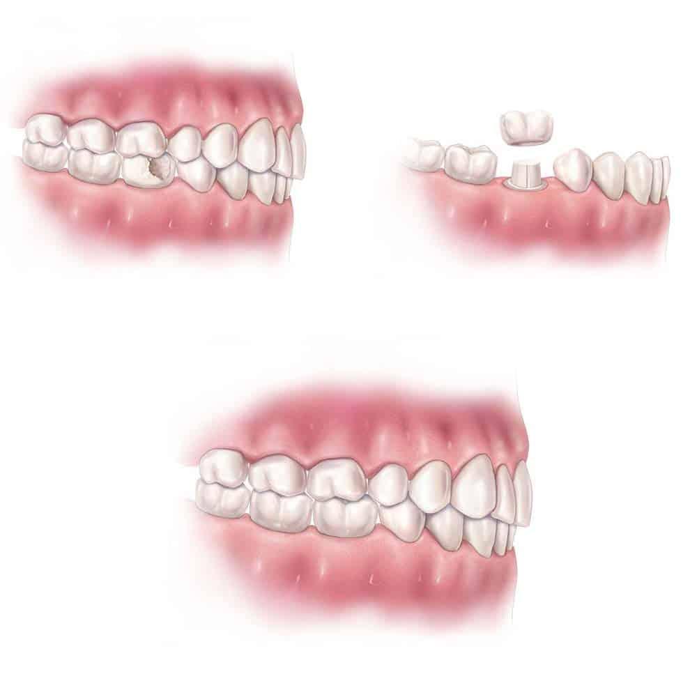 Dental Crowns & Tooth Caps: Costs, Procedure & FAQ 14