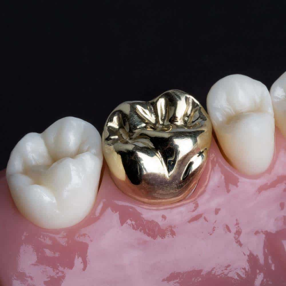 Dental Crowns & Tooth Caps: Costs, Procedure & FAQ 6