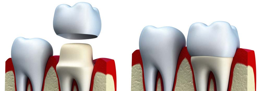 Dental Crowns & Tooth Caps: Costs, Procedure & FAQ 16