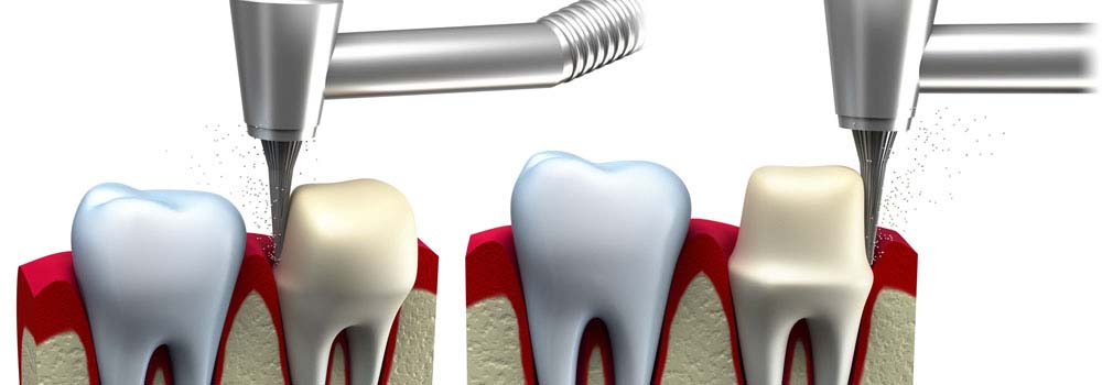 Dental Crowns & Tooth Caps: Costs, Procedure & FAQ 13
