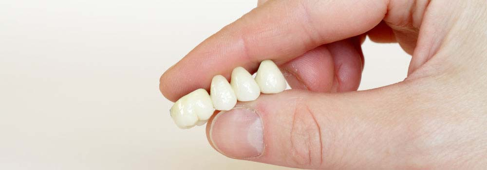 Dental Crowns & Tooth Caps: Costs, Procedure & FAQ 5