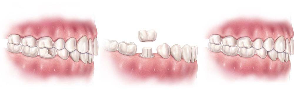 Dental Crowns & Tooth Caps: Costs, Procedure & FAQ 2