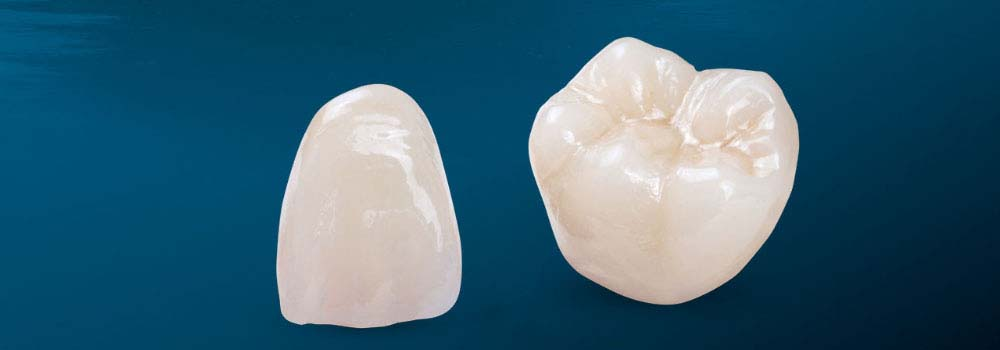 Dental Crowns & Tooth Caps: Costs, Procedure & FAQ 26