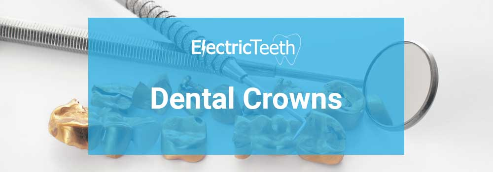 Dental Crowns Guide - Header Image