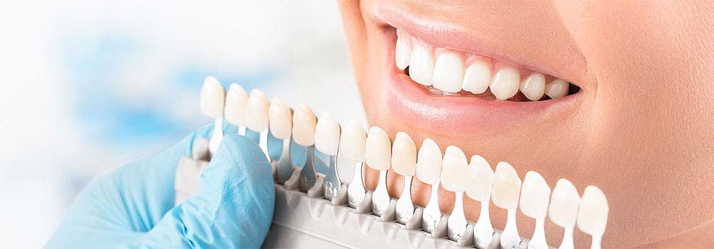 Yellow teeth: what causes them & do you need to worry about it? 19