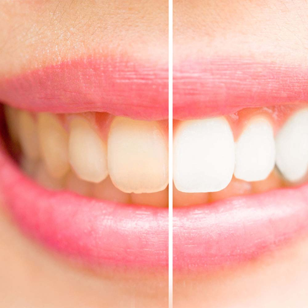 Yellow teeth: what causes them & do you need to worry about it? 3