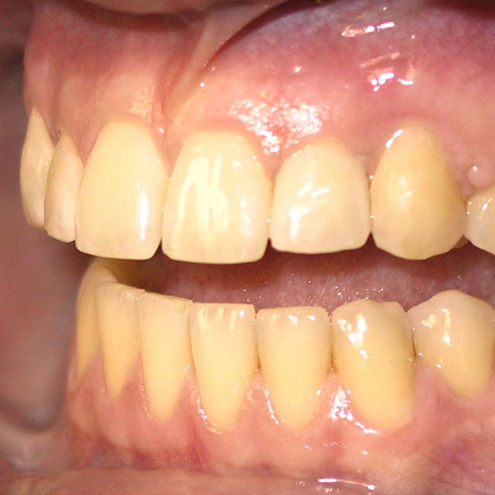 Yellow teeth: what causes them & do you need to worry about it? 22