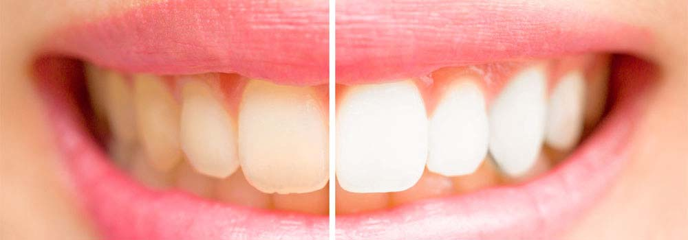 Yellow teeth: what causes them & do you need to worry about it? 18