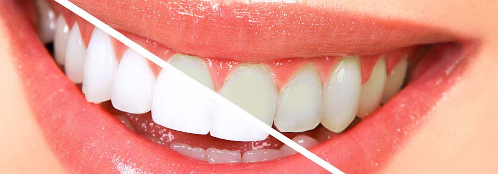 Yellow teeth: what causes them & do you need to worry about it? 16