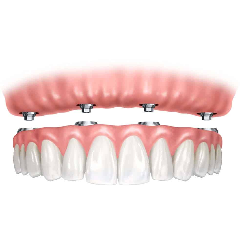 Denture Implants & Implant Retained Dentures: Procedure, Costs & FAQ 5