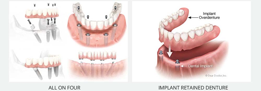 Denture Implants & Implant Retained Dentures: Procedure, Costs & FAQ 11